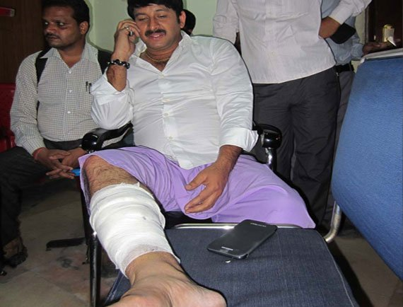 Bhojpuri Megastar Manoj Tiwari Injured